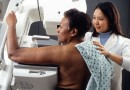 My first Mammogram screening